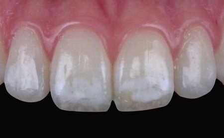 Cómo eliminar las manchas blancas de los dientes - Espacio Dental Jaén