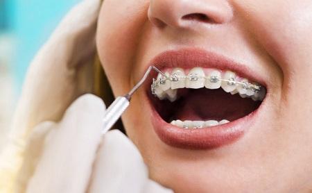 Urgencias en Ortodoncia - Espacio Dental Jaén