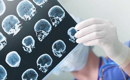 Enfermedad de las encías y enfermedad de Alzheimer, ¿relacionadas? - Espacio Dental Jaén