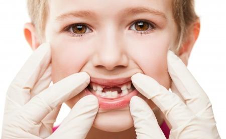 ¿Hay que empastar los dientes de leche? - Espacio Dental Jaén