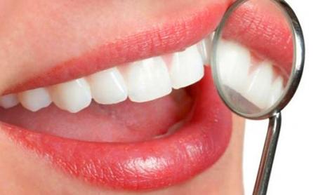 Esmalte dental. Qué es y cómo cuidarlo - Espacio Dental Jaén