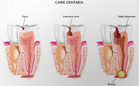 Etapas de la Caries Dental - Espacio Dental Jaén