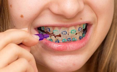 Cómo cuidar tu boca si llevas ortodoncia - Espacio Dental Jaén