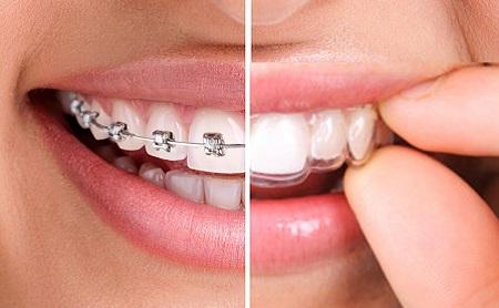 Cómo alinear tus dientes sin Bracketts - Espacio Dental Jaén