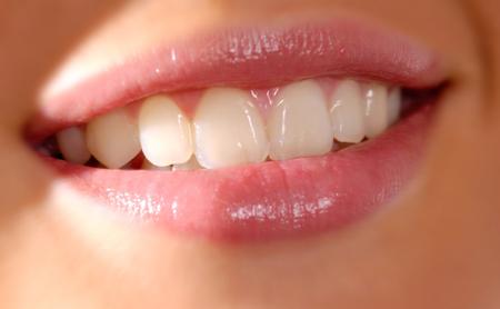 ¿Por qué los dientes sanos cambian de color? - Espacio Dental Jaén