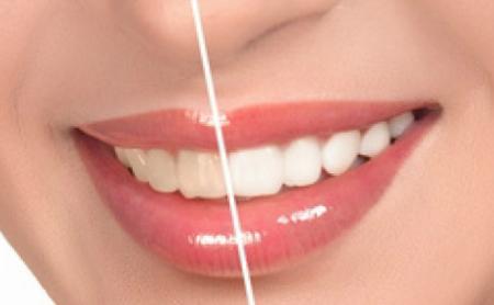 Preguntas y respuestas sobre el blanqueamiento dental - Espacio Dental Jaén
