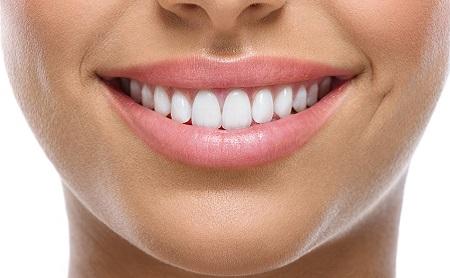 Todo lo que debes saber sobre los implantes dentales - Espacio Dental Jaén