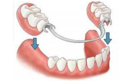 Cuidados y mantenimiento de las prótesis removibles - Espacio Dental Jaén