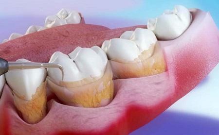 Qué es el raspado y alisado radicular (RAR) - Espacio Dental Jaén
