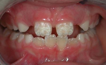 ¿Tiene tu hijo manchas blancas o marrones en los dientes? - Espacio Dental Jaén