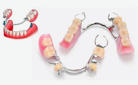DENTADURAS POSTIZAS PARCIALES PARTE 1 - Espacio Dental Jaén