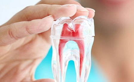 Qué es una endodoncia y para qué sirve - Espacio Dental Jaén