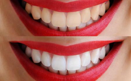 Qué hacer y qué no hacer después del blanqueamiento dental - Espacio Dental Jaén