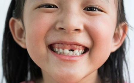 Qué saber y cómo actuar ante los dientes de leche - Espacio Dental Jaén