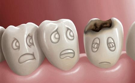 ¿Caries?¿Eso qué es? - Espacio Dental Jaén