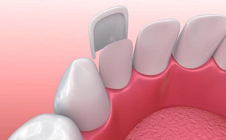 ¿Quieres volver a sonreir? Conoce las carillas dentales - Espacio Dental Jaén