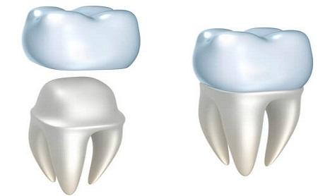 Coronas o fundas dentales - Espacio Dental Jaén