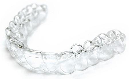 ¿Qué son los retenedores dentales? - Espacio Dental Jaén