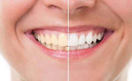Puedo blanquearme los dientes si llevo fundas o empastes - Espacio Dental Jaén