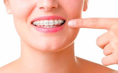 Tipos de ortodoncia - Espacio Dental Jaén