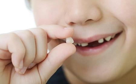 Tips para ayudar a soltar un diente de leche - Espacio Dental Jaén